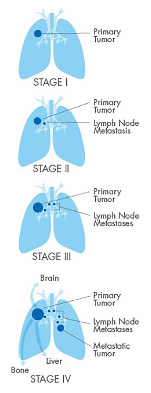 lung cancer in dogs stages