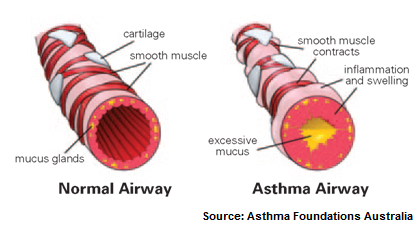 Asthma airway diagram inflammation
