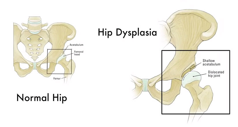hip_dysplasia-dog-diagram